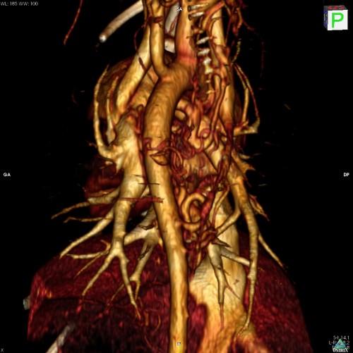 Reconstruction 3D du thorax d'un chien. Fistule aorto-pulmonaire.