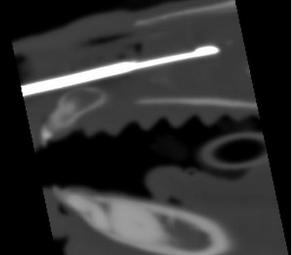Biopsie d'une masse nasale sous controle scanner chez un chien, VetRef, Angers.