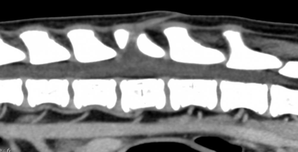 Reconstruction sagittale du rachis Lombaire, de L1 à L7