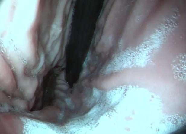 Fibroscopie 5 : Cardia (entrée de l'estomac), visualisé de l'intérieur de l'estomac, Angers, VetRef.