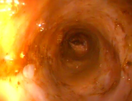 Fibroscopie 8 : Vue du colon d'un chien. Angers, VetRef