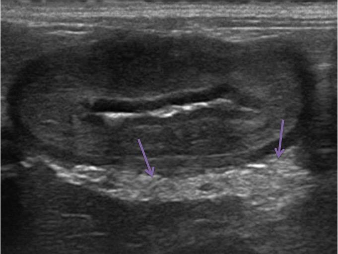 Hyperéchogénicité des graisses adjacentes à l'estomac.
